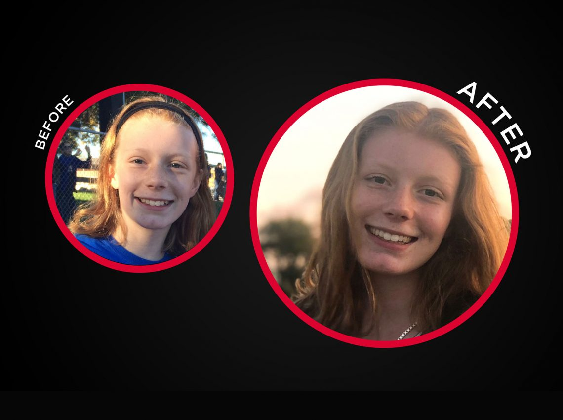 Smile with Confidence Before and After Braces 2
